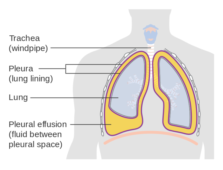Diagram_showing_a_build_up_of_fluid_in_the_lining_of_the_lungs_(pleural_effusion)_CRUK_054.svg
